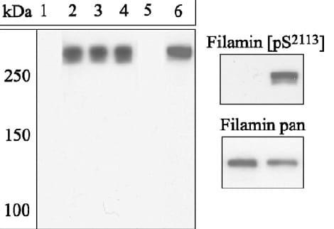 Western blot - Anti-Filamin C (phospho S2113) antibody (ab20485)
