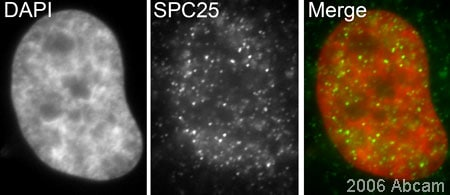 Immunocytochemistry/ Immunofluorescence - SPC25 antibody (ab20679)