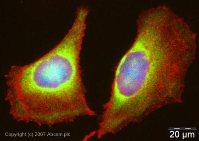 Immunocytochemistry/ Immunofluorescence - PABP antibody (ab21060)
