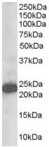 Western blot - STMN2 antibody (ab21190)