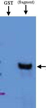 Western blot - HRP2 antibody (ab21792)