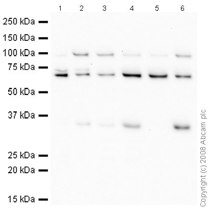 Western blot - cbx7 antibody (ab21873)