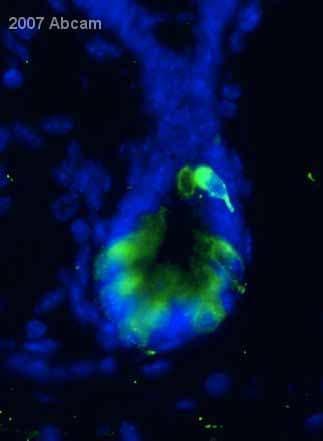 Immunocytochemistry/ Immunofluorescence - Peptide YY antibody (ab22663)