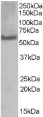 Western blot - PUF60 antibody (ab22819)