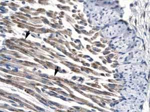 Immunohistochemistry (Formalin/PFA-fixed paraffin-embedded sections) - PP14397 antibody (ab22843)