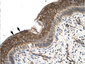Immunohistochemistry (Formalin-fixed paraffin-embedded sections) - ZFP1 antibody (ab22845)