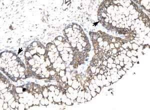 Immunohistochemistry (Formalin/PFA-fixed paraffin-embedded sections) - SLC17A3 antibody (ab23332)