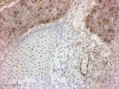 Immunohistochemistry (Formalin/PFA-fixed paraffin-embedded sections) - NOTCH3 antibody (ab23426)
