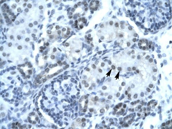 Immunohistochemistry (Formalin/PFA-fixed paraffin-embedded sections) - Anti-Pax2 antibody - ChIP Grade (ab23799)