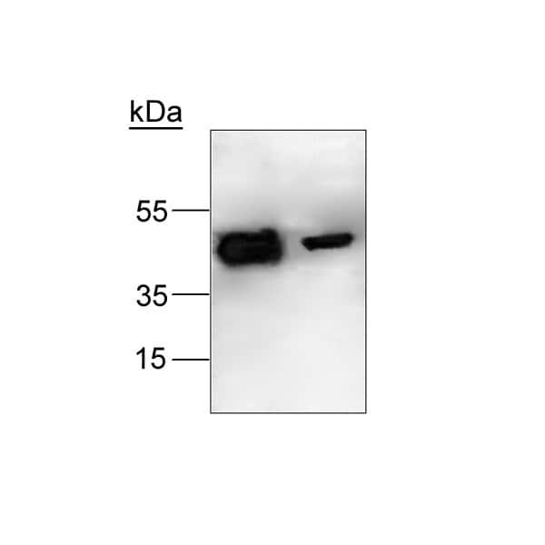 Western blot - LXR alpha + LXR beta antibody (ab24532)