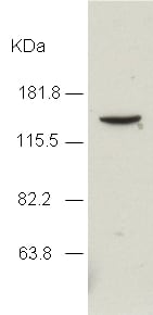 Western blot - JMJD2A antibody - ChIP Grade (ab24545)