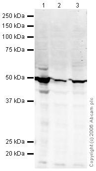 Western blot - Cytokeratin 18 antibody (ab24561)