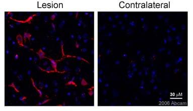 Immunohistochemistry (Frozen sections) - CD146 antibody [P1H12] (ab24577)