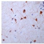 Immunohistochemistry (Formalin-fixed paraffin-embedded sections) - Guanylyl Cyclase beta 1 antibody (ab24824)