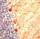 Immunohistochemistry (Formalin-fixed paraffin-embedded sections) - Calbindin antibody (ab25085)