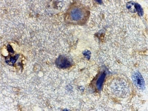 Immunohistochemistry (Formalin/PFA-fixed paraffin-embedded sections) - RHEB antibody (ab25873)