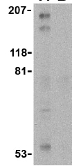 Western blot - Tuberin antibody (ab25883)