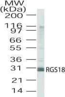 Western blot - RGS18 antibody (ab25917)