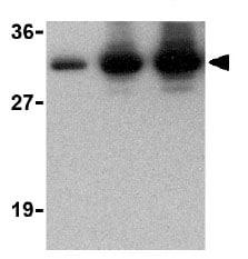 Western blot - CTRP2 antibody (ab25943)