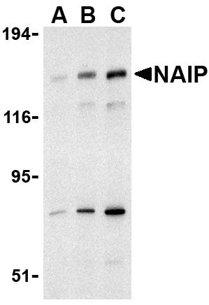Western blot - NAIP antibody (ab25968)