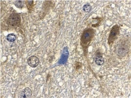 Immunohistochemistry (Formalin/PFA-fixed paraffin-embedded sections) - G protein beta subunit like antibody (ab25974)