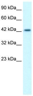 Western blot - LHX3 antibody (ab26025)