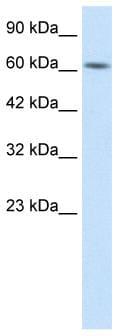 Western blot - BTB domain containing 5 antibody (ab26112)