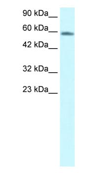 Western blot - CHES1 antibody (ab26158)