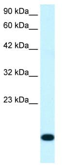 Western blot - RPS16 antibody (ab26159)
