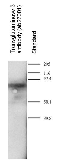Western blot - Transglutaminase 3 antibody (ab27001)