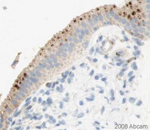 Immunohistochemistry (Formalin/PFA-fixed paraffin-embedded sections) - Anti-Gigaxonin antibody (ab27041)