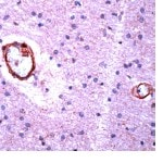 Immunohistochemistry (Formalin-fixed paraffin-embedded sections) - beta Amyloid antibody, prediluted (ab27273)