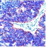 Immunohistochemistry (Formalin-fixed paraffin-embedded sections) - Claudin 7 antibody, prediluted (ab27488)