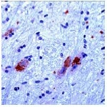 Immunohistochemistry (Formalin-fixed paraffin-embedded sections) - CAMKIV antibody, prediluted (ab27490)