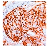 Immunohistochemistry (Formalin-fixed paraffin-embedded sections) - ErbB2 antibody [SP3] (ab27597)