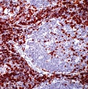 Immunohistochemistry (Formalin-fixed paraffin-embedded sections) - CD5 antibody [SP19], prediluted (ab27609)