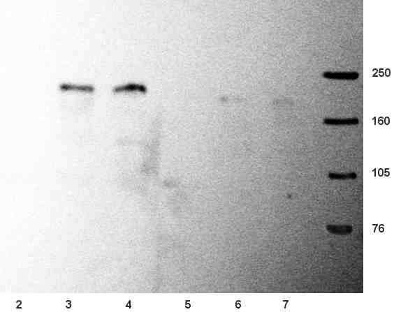 Western blot - NMDAR2B antibody [NR2B] (ab28373)