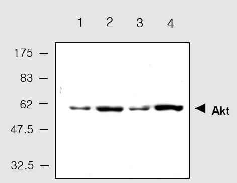 Western blot - AKT1 antibody (ab28422)