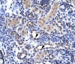 Immunohistochemistry (Formalin/PFA-fixed paraffin-embedded sections) - Anti-KAT4 / TBP Associated Factor 1 antibody - ChIP Grade (ab28450)