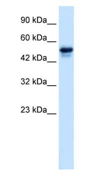 Western blot - SETD4 antibody (ab28628)
