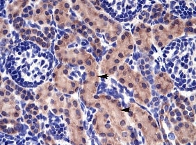 Immunohistochemistry (Formalin/PFA-fixed paraffin-embedded sections) - Anti-RAB14 antibody (ab28639)