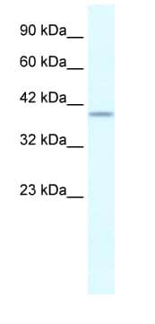 Western blot - PHKG2 antibody (ab28642)