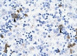 Immunohistochemistry (Paraffin-embedded sections) - TRIM17 antibody (ab28672)