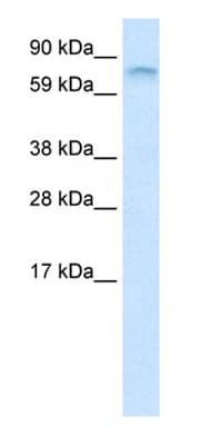 Western blot - FUBP1 antibody (ab28732)