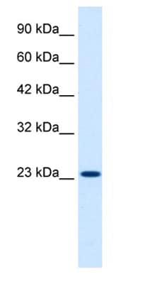 Western blot - KCNIP2 antibody (ab28734)