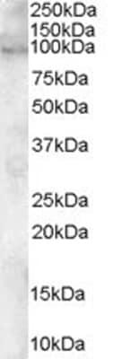 Western blot - ADAM12 antibody (ab28747)