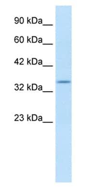 Western blot - Kv beta 2 antibody (ab28795)