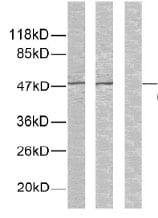 Western blot - GSK3 alpha (phospho S21) antibody (ab28808)