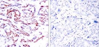 Immunohistochemistry (Paraffin-embedded sections) - ATF2 (phospho S94) antibody (ab28814)