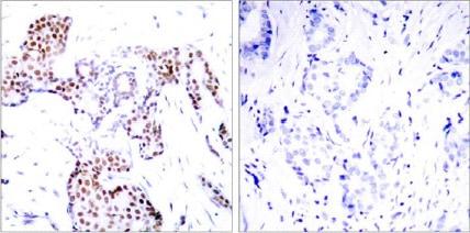 Immunohistochemistry (Paraffin-embedded sections) - ELK1 (phospho S389) antibody (ab28818)